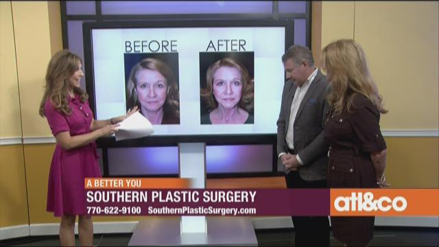Southern Plastic Surgery
